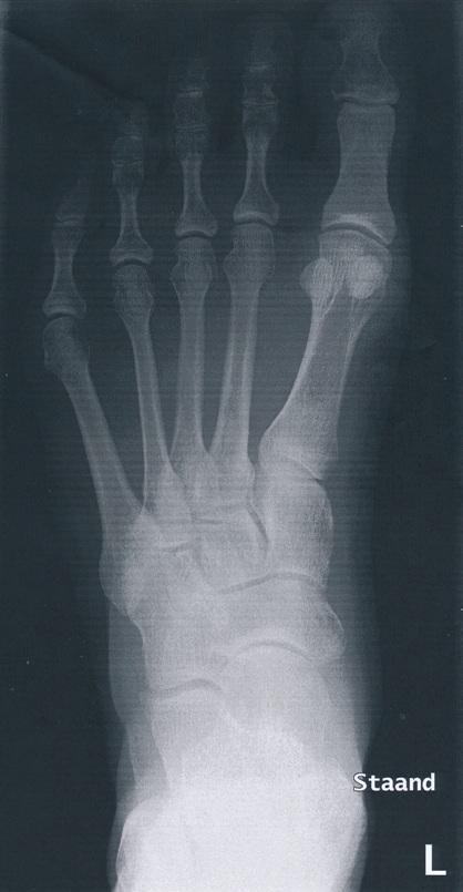 Röntgenfoto voet, van boven af